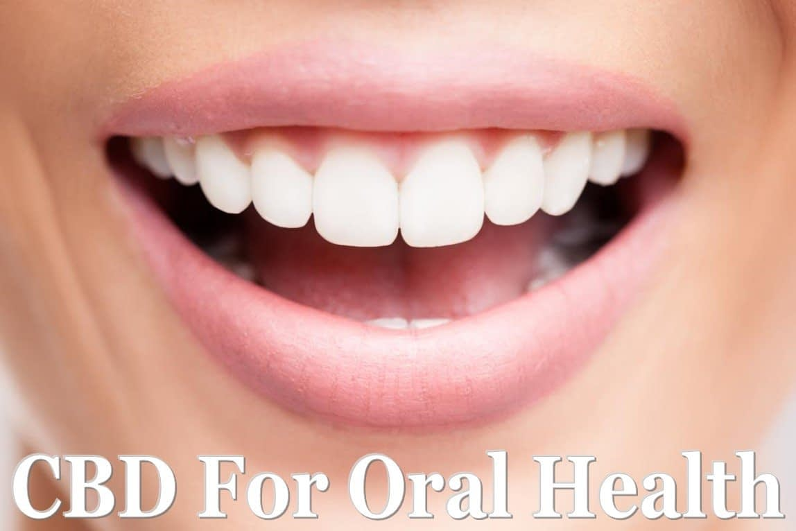 All things CBD and Oral Health